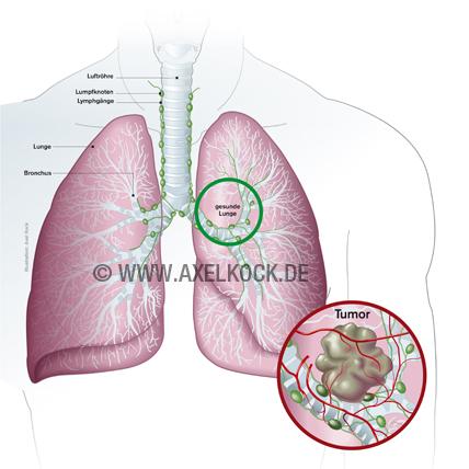 gewichtsverlust bei lungenkrebs